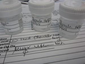 Three moles in a three jars.