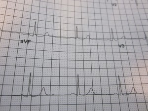 My electrocardilgram